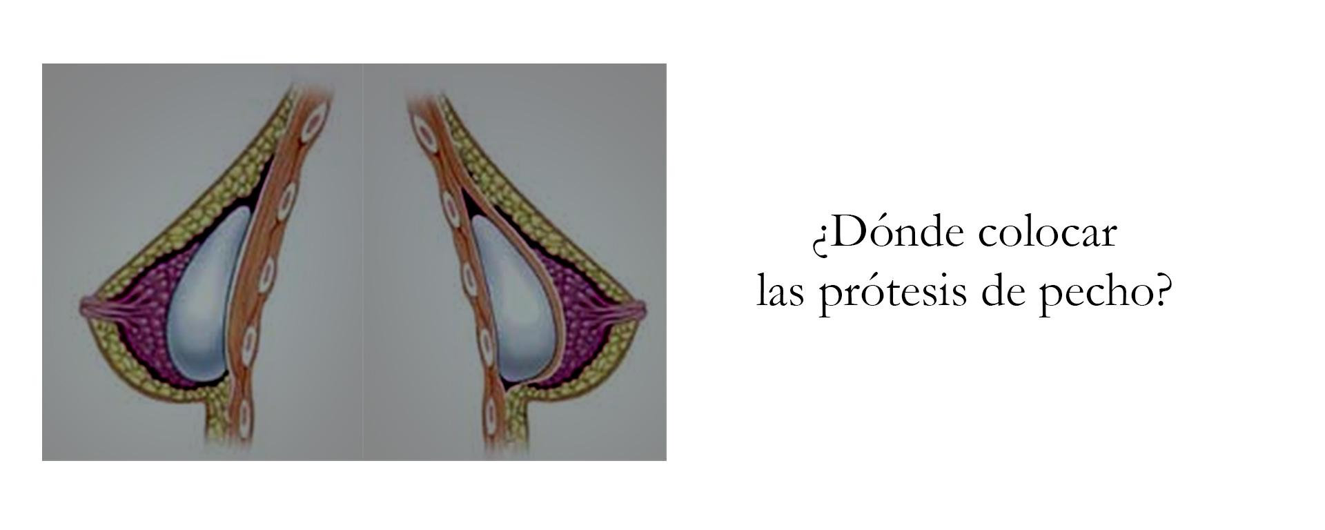 Colocación de las prótesis de pecho