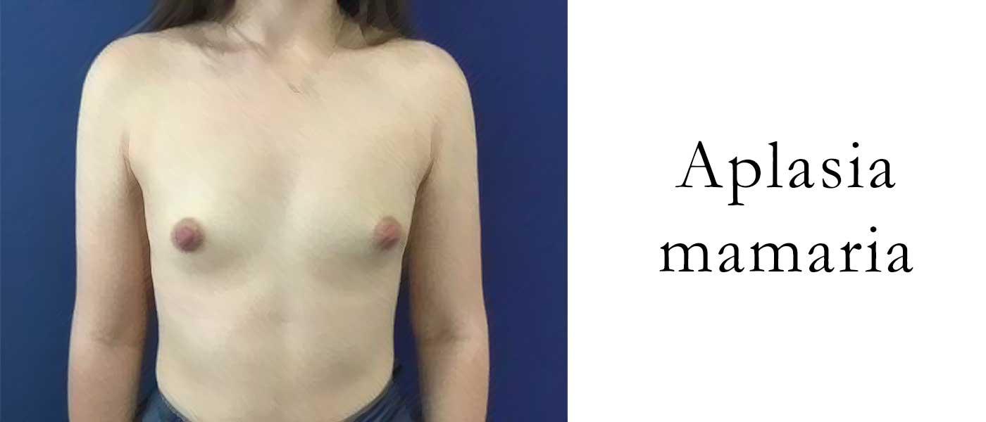 aplasia mamaria